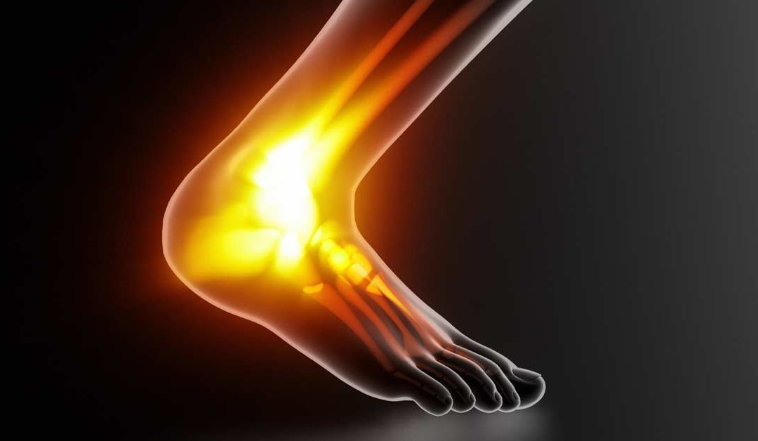 Achilles Tendon Injuries in Sport: A Coach's Perspective